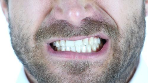 man grinding his teeth